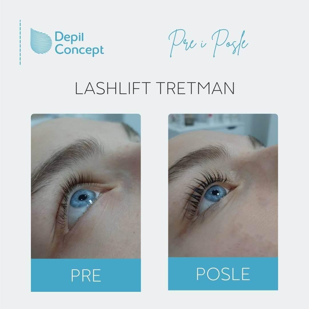LASHLIFT TRETMAN