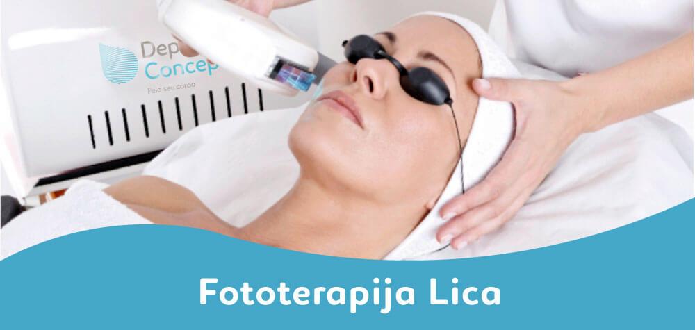 fototerapija lica