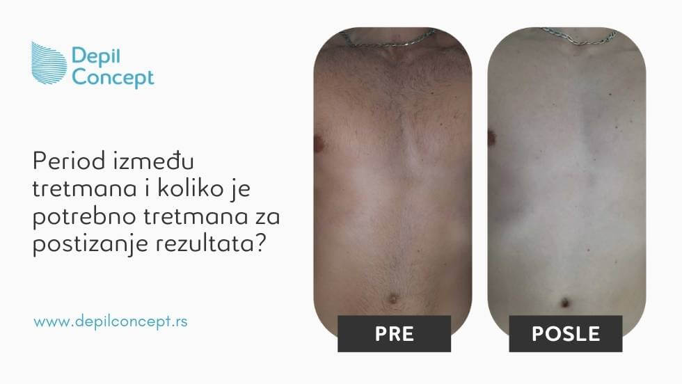 epilacija za muškarce beograd depilconcept pre i posle rezultati tretmana