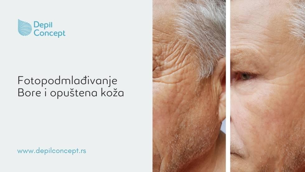fototerapija fotopodmlađivanje kože lica bore opuštena koža