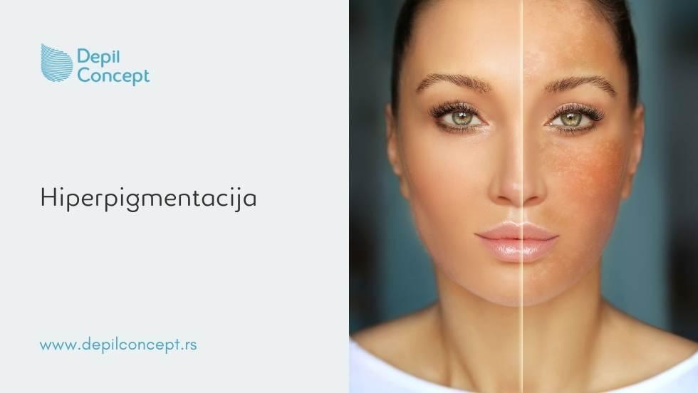 fototerapija kože lica hiperpigmentacija fleke od sunca rešenje depilconcept beograd srbija