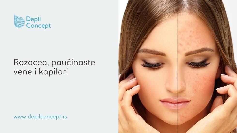 fototerapija kože lica rozacea paučinaste vene kapilari rešenje depilconcept beograd
