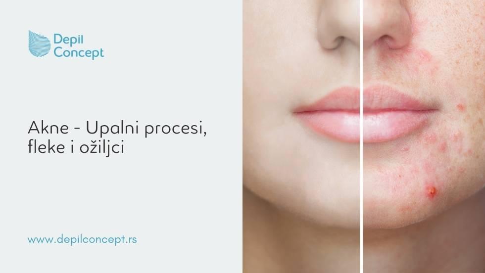 depilconcept fototerapija kože lica akne upalni procesi fleke ožiljci