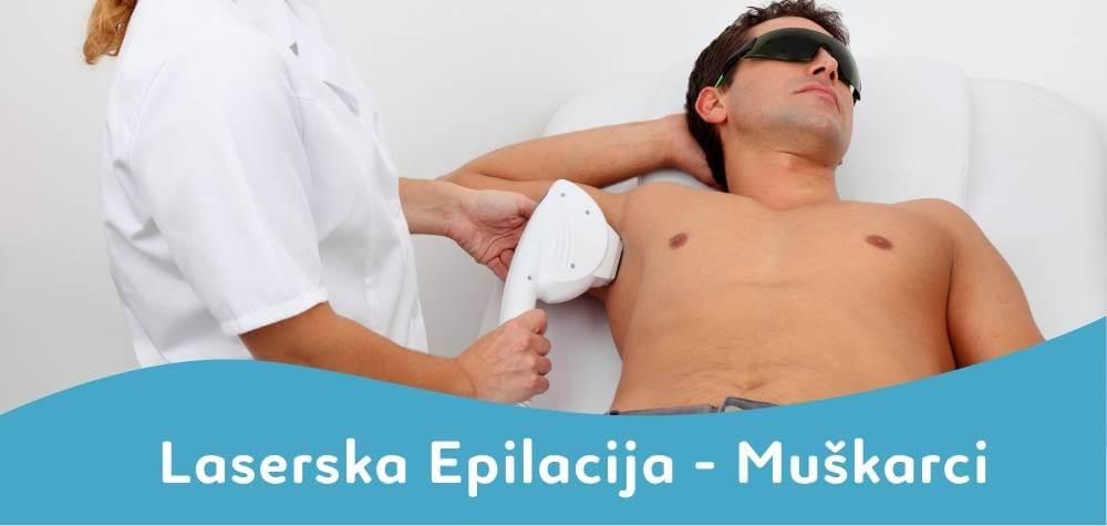 laserska epilacija za muškarce depilconcept beograd srbija